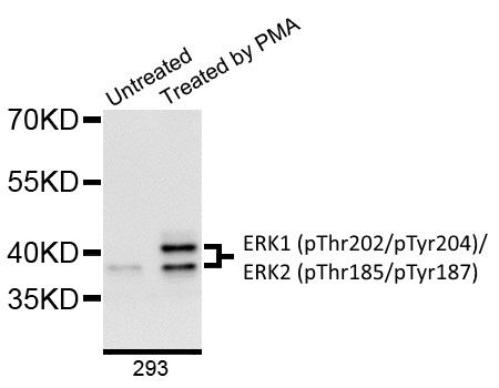 ERK1 (pThr202/pTyr204)/ERK2 (pThr185/pTyr187) Antibody gallery image 1