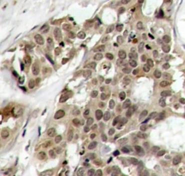ERK1 (pTyr204) Antibody gallery image 2