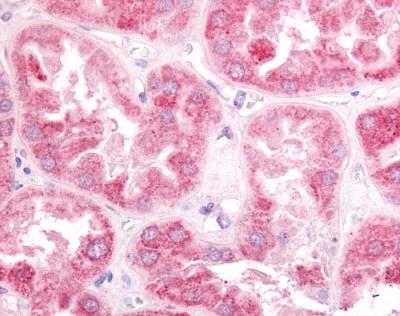 ERR Gamma Antibody gallery image 1