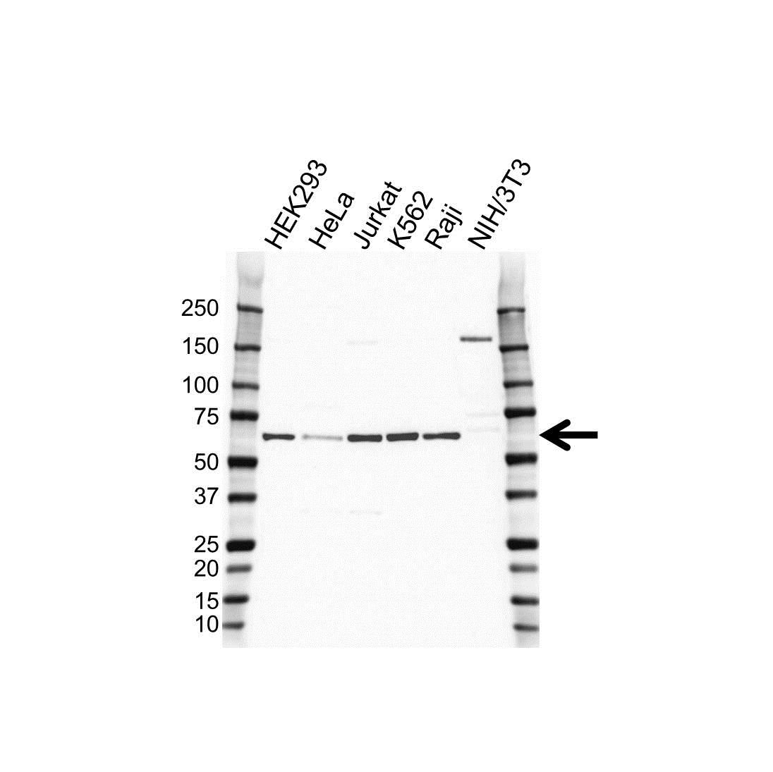 Erythropoietin Receptor Antibody (PrecisionAb<sup>TM</sup> Antibody) gallery image 1
