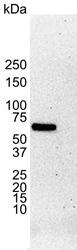 Estrogen Receptor Alpha Antibody | 6F11 gallery image 1