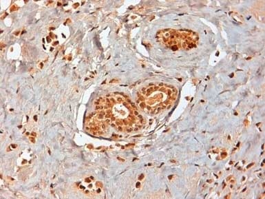Estrogen Receptor Beta 1 Antibody | PPG5/10 gallery image 7