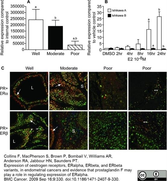 Estrogen Receptor Beta 1 Antibody | PPG5/10 gallery image 9