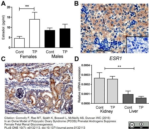 Estrogen Receptor Beta 1 Antibody | PPG5/10 gallery image 10