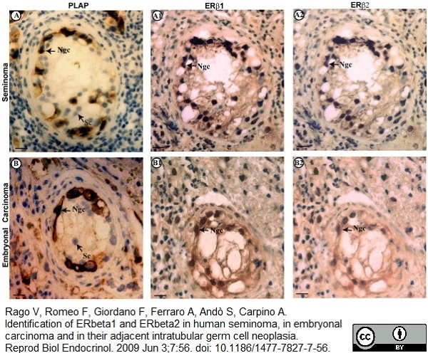 Estrogen Receptor Beta 1 Antibody | PPG5/10 gallery image 14