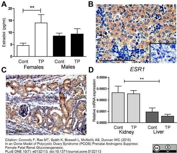 Estrogen Receptor Beta 1 Antibody | PPG5/10 gallery image 13