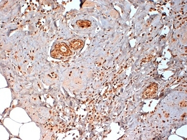 Estrogen Receptor Beta 1 Antibody | PPG5/10 gallery image 6