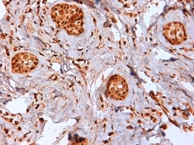 Estrogen Receptor Beta 2 Antibody | 57/3 gallery image 2