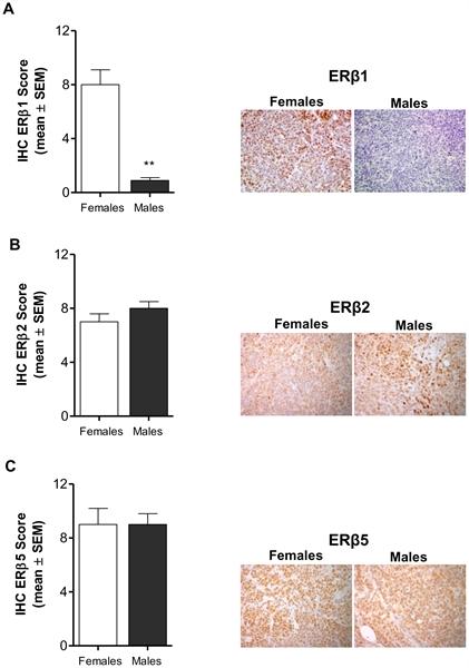 Estrogen Receptor Beta 2 Antibody | 57/3 gallery image 4