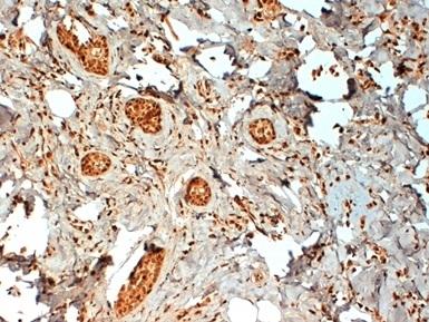 Estrogen Receptor Beta 2 Antibody | 57/3 gallery image 1