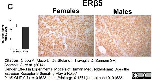 Estrogen Receptor Beta 5 Antibody | 5/25 gallery image 5