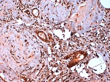 Estrogen Receptor Beta 5 Antibody | 5/25 gallery image 1