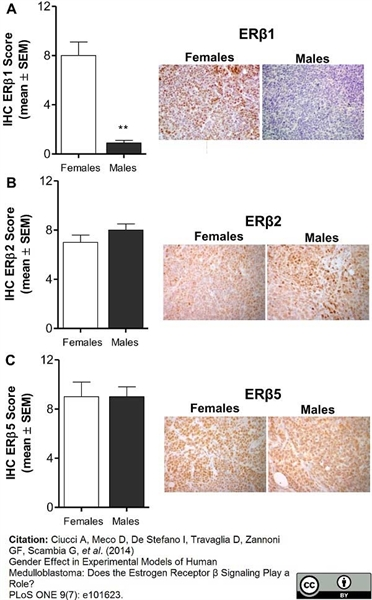 Estrogen Receptor Beta 5 Antibody | 5/25 gallery image 4