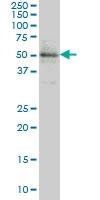 ETV5 Antibody | 3B10 gallery image 1
