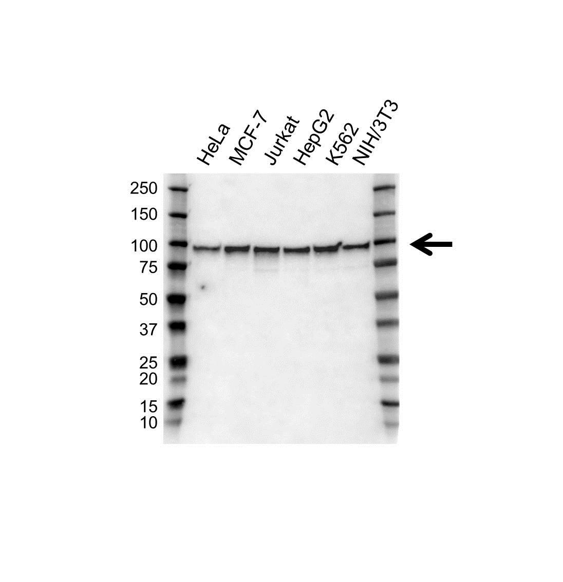 EWSR1 Antibody (PrecisionAb<sup>TM</sup> Antibody) gallery image 1