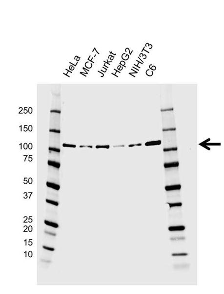 EZH2 Antibody (PrecisionAb<sup>TM</sup> Antibody) | EF01/1C3.H6.1 gallery image 1