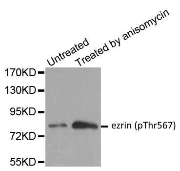 Ezrin (pThr567) Antibody gallery image 1