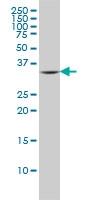 Fc Epsilon R1 Alpha Antibody | 2C12-3B6 gallery image 1