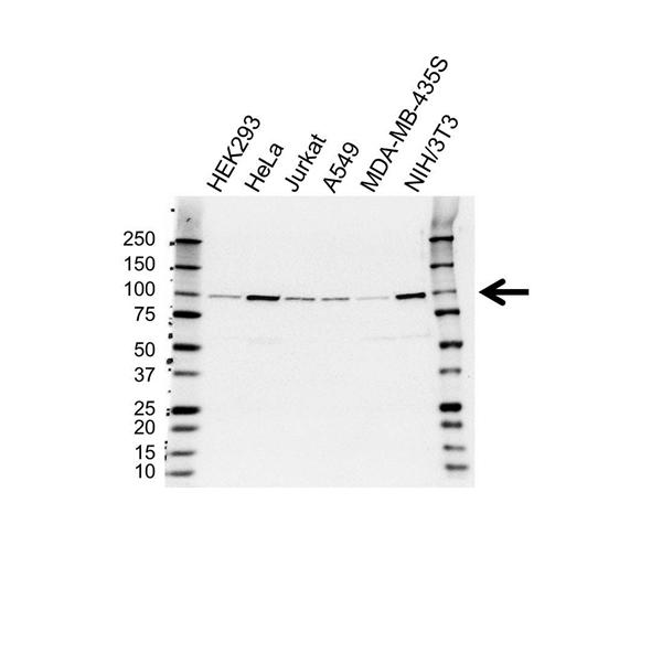 FER Antibody (PrecisionAb<sup>TM</sup> Antibody) gallery image 1