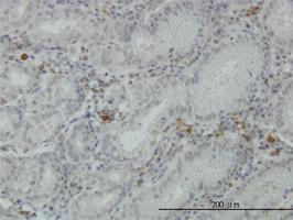 FGL2 Antibody | 6D9 gallery image 2
