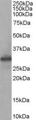 FHL1 Antibody gallery image 1