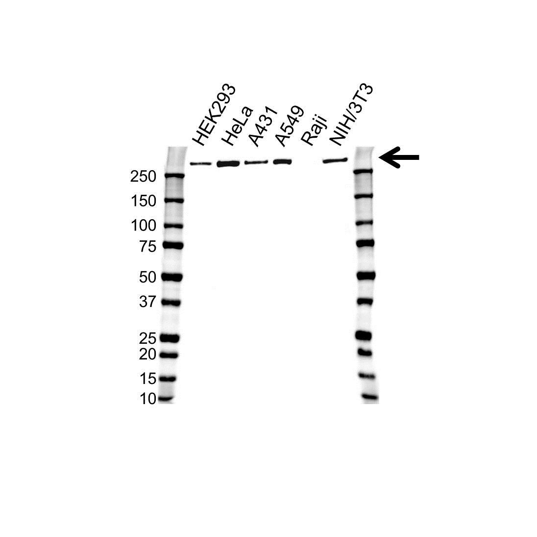 Filamin-A Antibody (PrecisionAb<sup>TM</sup> Antibody) gallery image 1