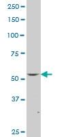FLI1 Antibody | 1H4 gallery image 1
