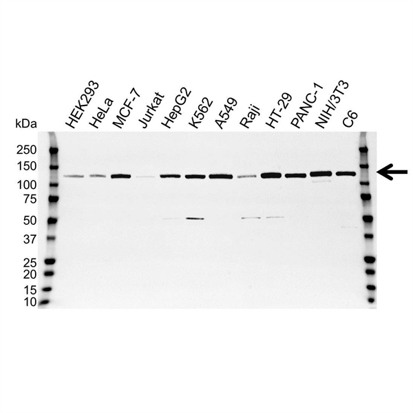 Focal Adhesion Kinase Antibody (PrecisionAb<sup>TM</sup> Antibody) | 4A8 gallery image 1