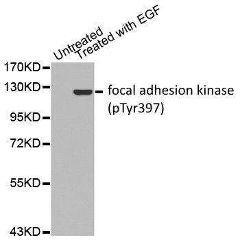 Focal Adhesion Kinase (pTyr397) Antibody gallery image 1