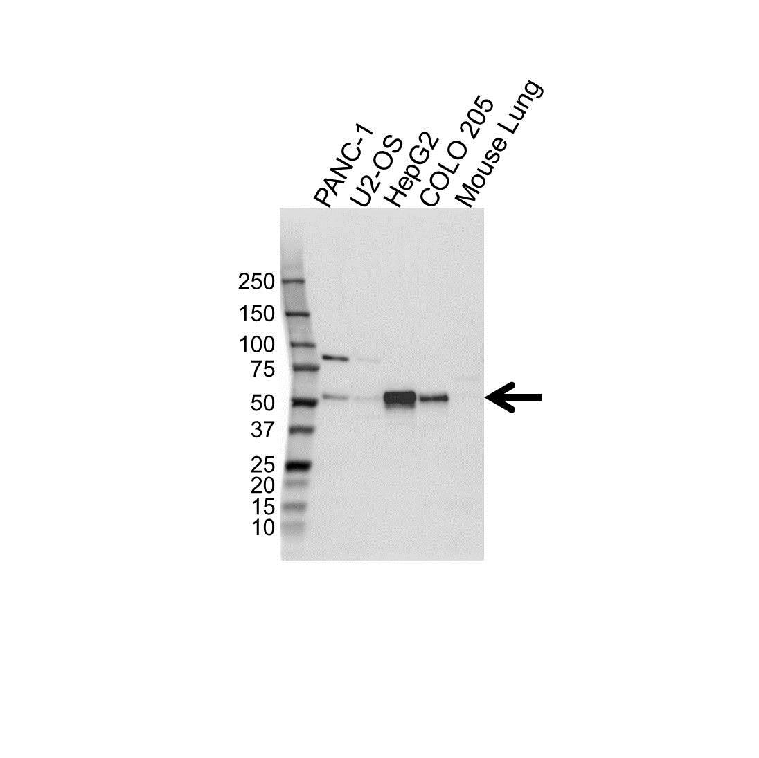 FOXA1 Antibody (PrecisionAb<sup>TM</sup> Antibody) gallery image 1