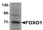 FOXO1 Antibody gallery image 2
