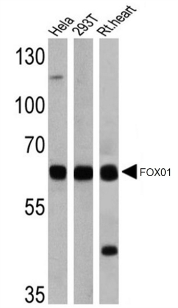 FOXO1 Antibody gallery image 1
