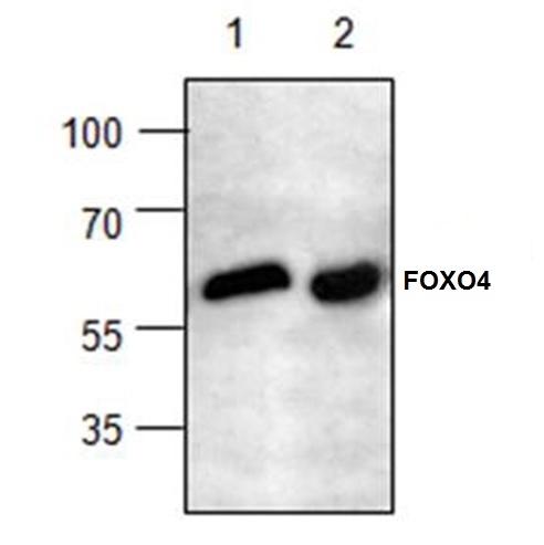 FOXO4 Antibody gallery image 1