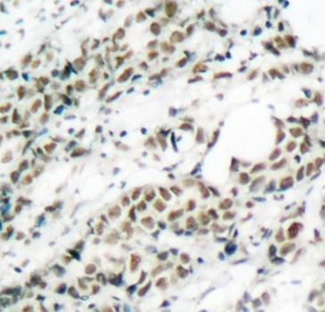 FOXO4 (pSer197) Antibody gallery image 2