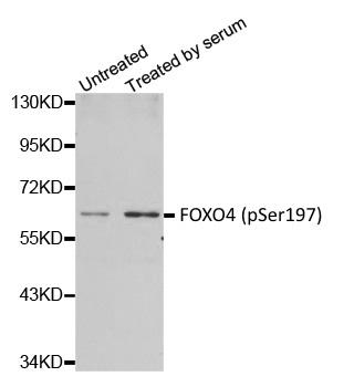 FOXO4 (pSer197) Antibody gallery image 1