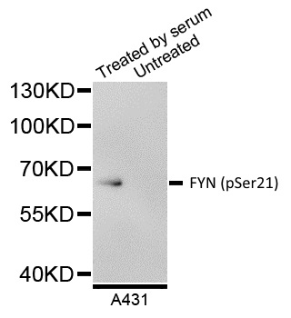 FYN (pSer21) Antibody gallery image 1