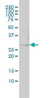 Galectin-3 Antibody | 3C2-2A3 gallery image 1