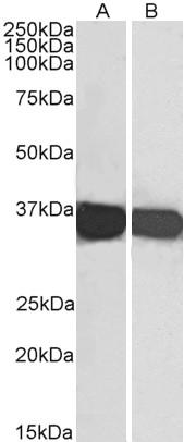 GAPDH Antibody gallery image 2