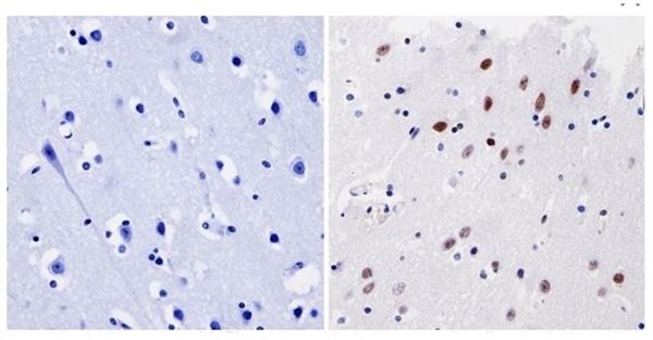 GATA1 Antibody gallery image 4