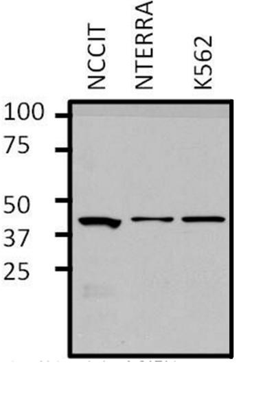 GATA1 Antibody gallery image 6