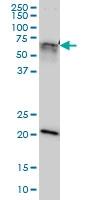 GATAD2A Antibody   3F3 gallery image 1