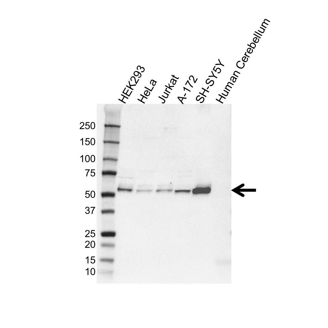 GDI1 Antibody (PrecisionAb<sup>TM</sup> Antibody) gallery image 1
