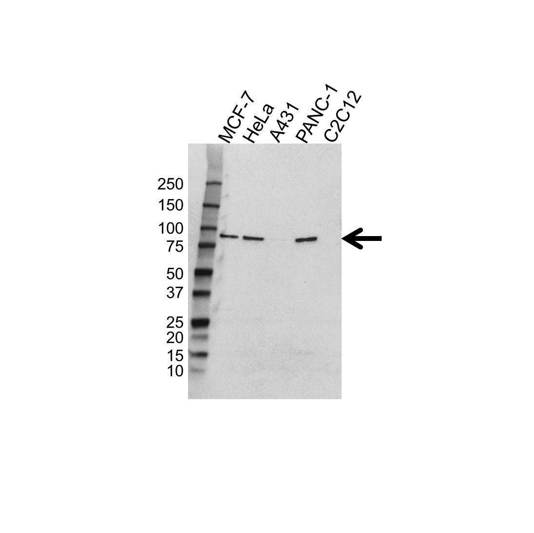 Gelsolin Antibody (PrecisionAb<sup>TM</sup> Antibody) gallery image 1