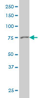 Gelsolin Antibody | 3G5 gallery image 1