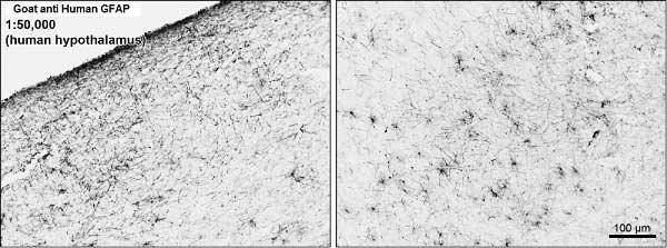 GFAP Antibody gallery image 2