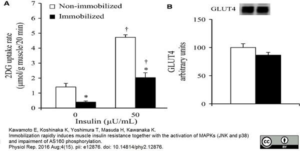 Glucose Transporter 4 Antibody gallery image 2
