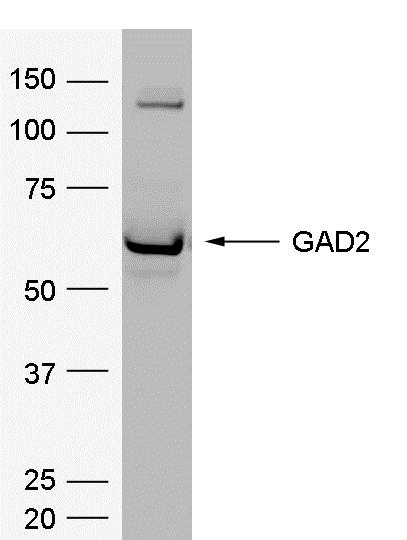 Glutamate Decarboxylase 2 Antibody | 114.4E8 gallery image 1