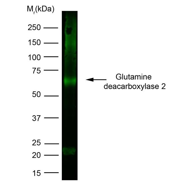 Glutamate Decarboxylase 2 Antibody | N-GAD65 gallery image 1