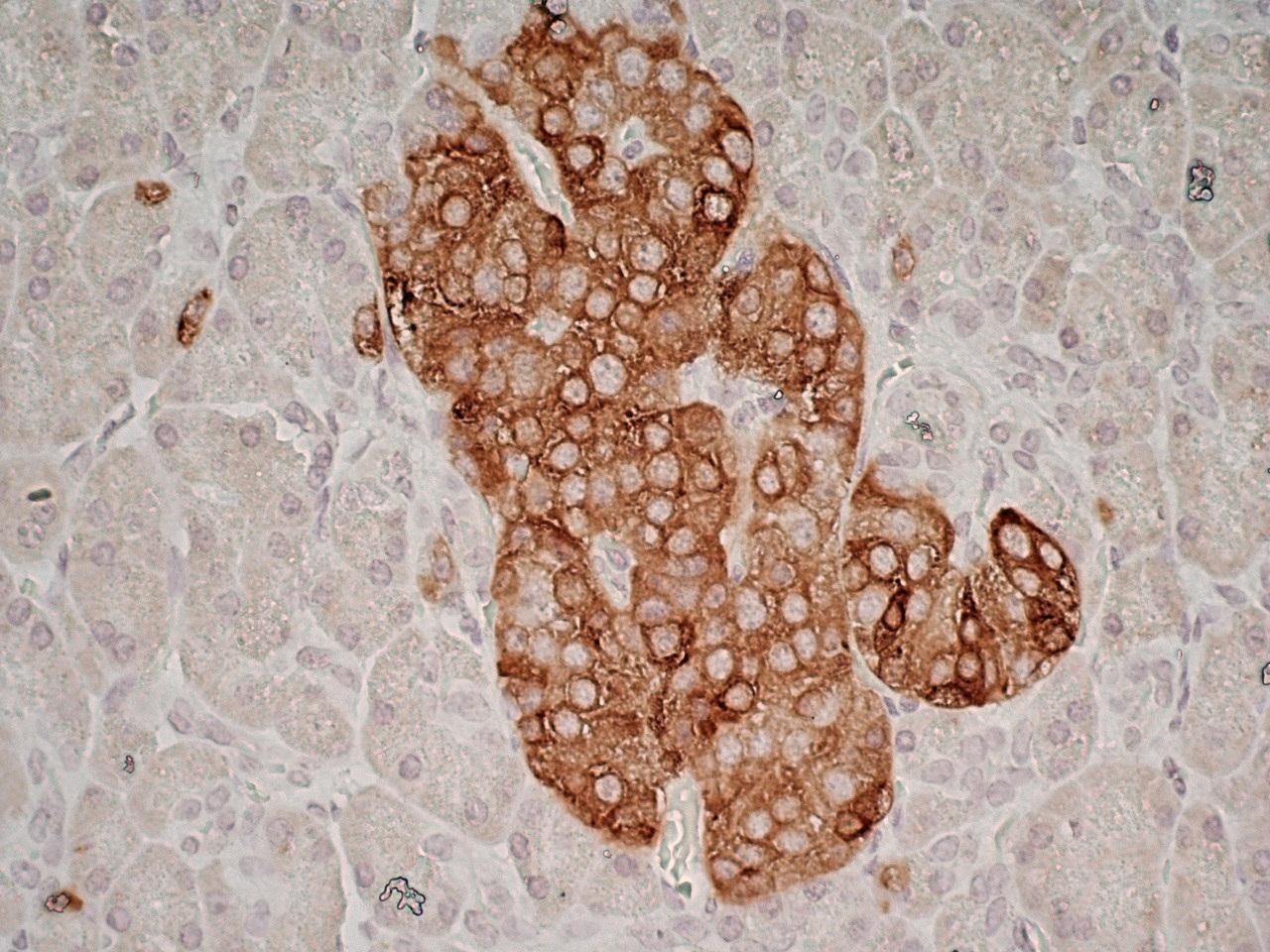 Glutamate Decarboxylase 2 Antibody | N-GAD65 gallery image 4