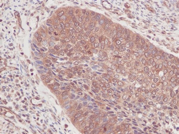 GM-CSF Antibody gallery image 2